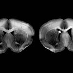 Study links gene to inherited form of autism